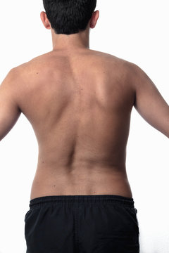 scoliosis, thin man on his back, no shirt. curvature of the spin