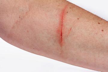 Ein blutiger entzündeter Kratzer am Arm einer Frau