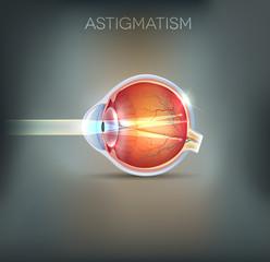 Astigmatism, vision disorder