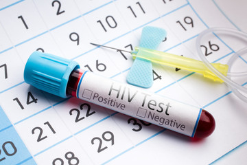 Blood test for analysis of HIV /blood sample in a tube with label HIV on a monthly planner appointments