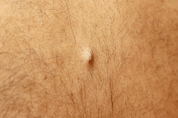 sebaceous cyst on the back of the male
