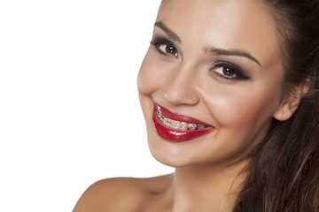 smiling beautiful young woman with braces