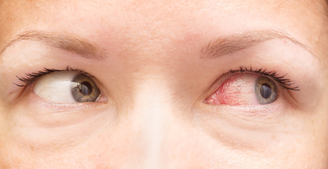 healthy and irritated eye