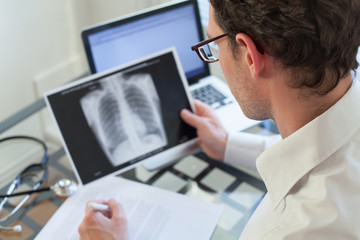 doctor looking at x-ray of lungs and writing diagnosis