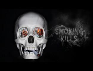 Smoking kills #1