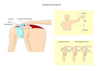 sindrome da impingement della spalla