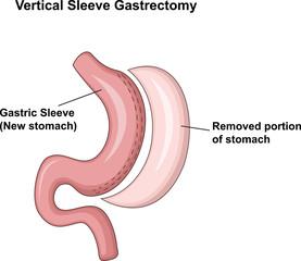 Illustration of Vertical Sleeve Gastrectomy (VSG)