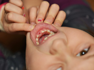 Young caucasian girl after dental extraction