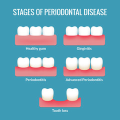 Periodontal Disease Chart