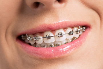 Happy success smile with perfect teeth and braces