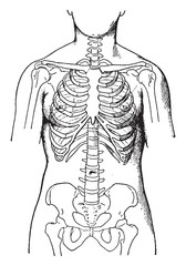 Deformed by the corsets, showing condition of bones in women who