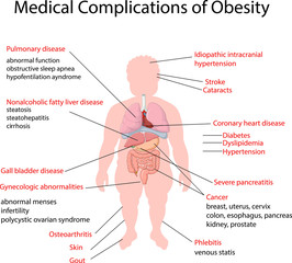 Illustration of Medical Complication of Obesity
