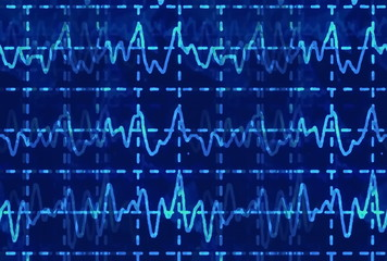 brain wave on electroencephalogram EEG for epilepsy, illustration