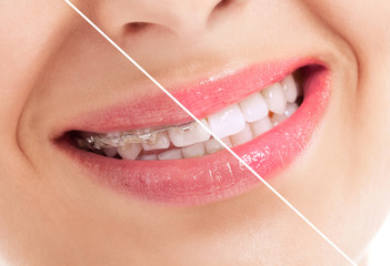 Beautiful heathy smile before and after braces