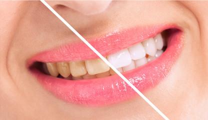 Breaching teatment, woman perfect whiten teeth