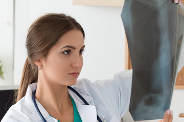Young female doctor looking at lungs x-ray image