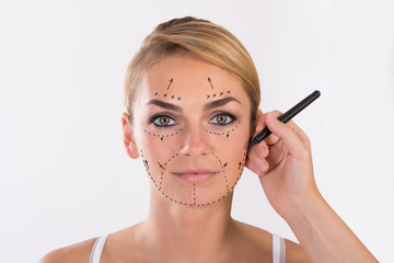 Young Woman Undergoing Facelift Surgery