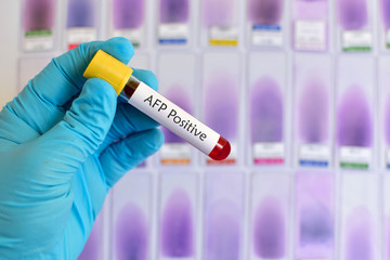 Blood sample with AFP (Alfa-fetoprotein, tumor marker for liver) positive