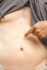 the old man's stomach and a scar from the surgery.