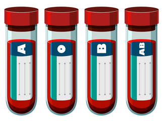 Different blood types in test tube