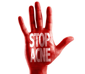 Stop Acne written on hand isolated on white background