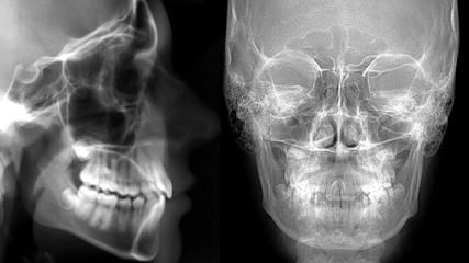 cefalometria: profilo frontale e laterale