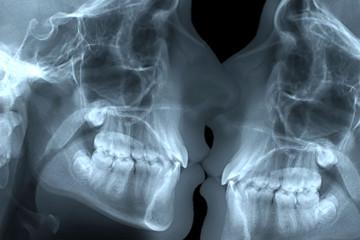 bacio radiografia dentale