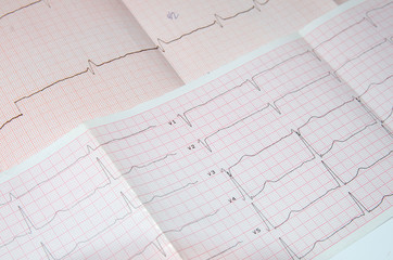 Cardiogram on the grid