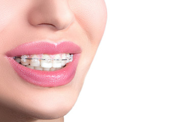 Closeup Ceramic Braces on Teeth. Beautiful Female Smile with Braces. Orthodontic Treatment. Dental care Concept.