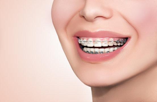 Ceramic Dental Braces Teeth. Closeup Female Smile.