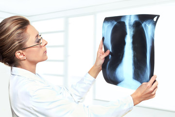 Female doctor examining lung x-ray image