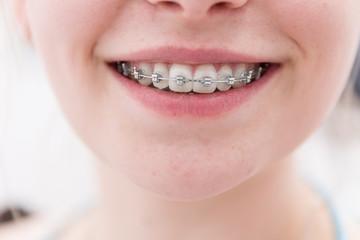 lachender Mund eines Mädchens mit Zahnspange