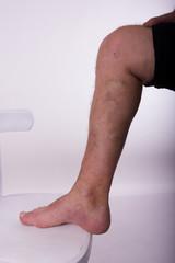 Men's diseased leg with phlebeurysm