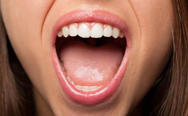 A young pretty woman teeth extreme closeup photo