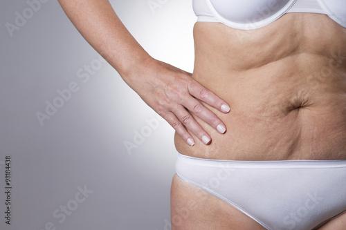 Вернуть упругость коже после похудения