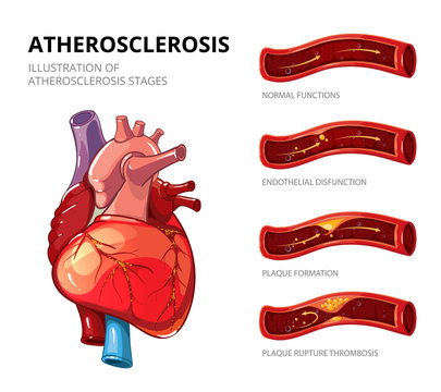 Atherosclerosis. Fibrous plaque formation. Vector infographic
