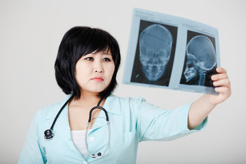Young female Asian doctor with stethoscope looking at the x-ray