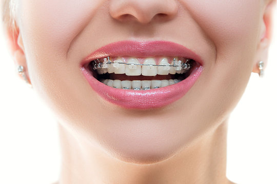 Close up Braces on Teeth. Braces Smile. Orthodontic Treatment. Closeup Smiling Face with Braces. Front view..