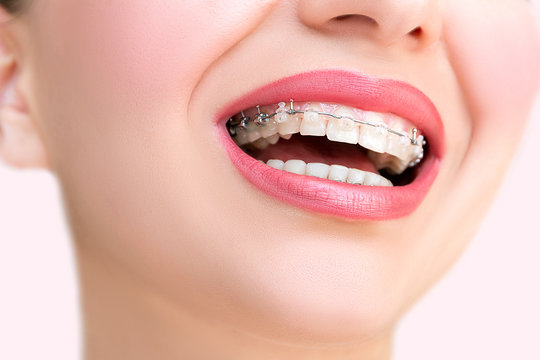 Close up Ceramic and Metal Braces on Teeth. Beautiful Female Smile with Self-ligating Braces. Orthodontic Treatment..