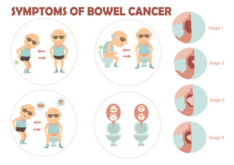 bowel cancer Old man suffered colon cancer and charts the growth of tumors in the colon infographic.Vector illustration