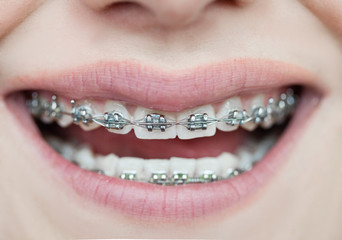 Wall Mural - dental care teeth, prevention of dental diseases