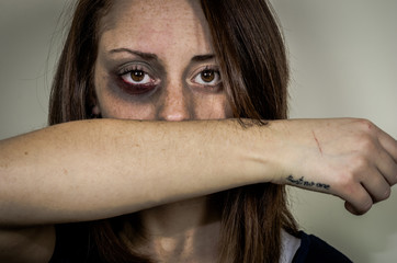 Sad beaten up girl with wounds on the face looking at the camera with deep look - caucasian people - concept about violence against women