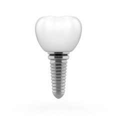 Tooth implant 3d illustration