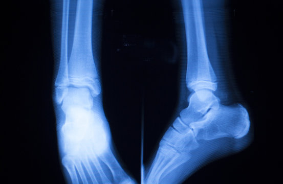 Foot ankle and shin xray scan