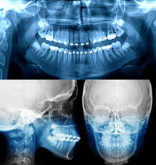 x-ray with dental braces, orthodontic treatment
