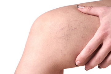 varicose veins in women