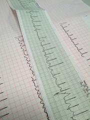 elettrocardiogramma al pronto soccorso