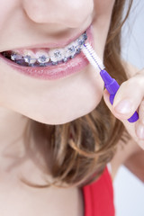 Dental Hygiene Concepts. Closeup Shot of Caucasian Teenage Girl With Teeth Brackets Bristle Brush