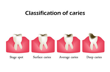 Types of dental caries. Infographics. Vector illustration on isolated background