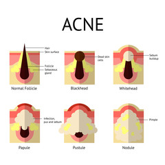 Types of acne pimples. Healthy skin, Whiteheads and Blackheads, Papules and Pustules in flat style.